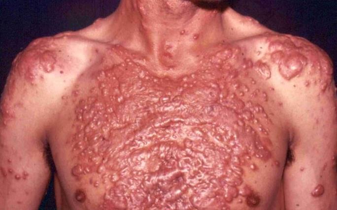 acne%20site%204.jpg